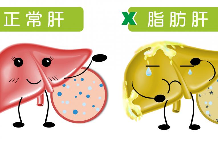 [新聞] 如果要幫肝臟排毒淨化 首要關鍵逆轉脂肪肝
